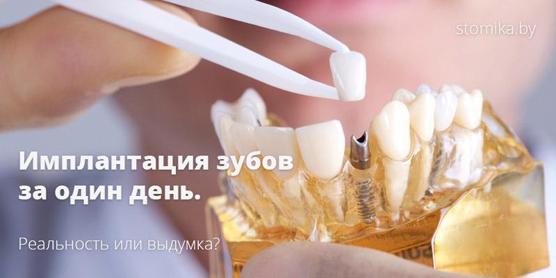 Сколько стоит зубной имплант под ключ