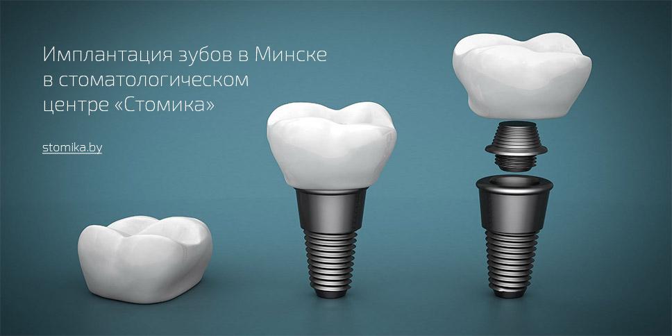 Имплантация зубов в Минске, зубная имплантация в Белоруссии (Беларусь)