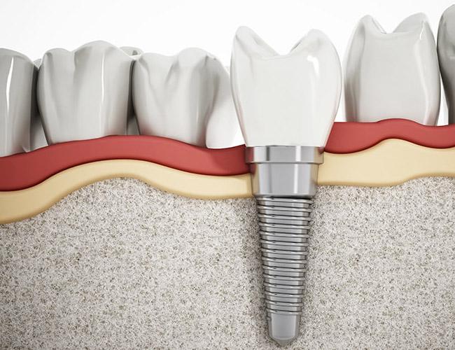 c0e73187c3318 Одноэтапная имплантация зубов в Минске цены, отзывы, минусы процедуры